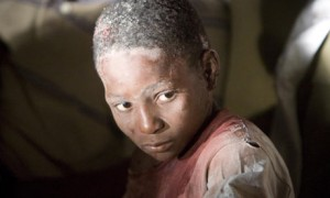 An injured child at a Hotel in Port-au-Prince, Haiti Photograph: Ivanoh Demers/AP