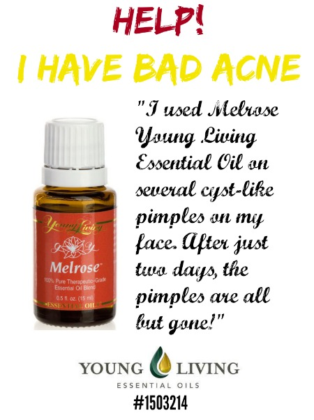 Melrose Essential Oil for bad acne