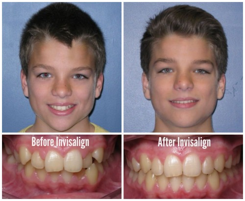 Before and After Invisalign ZACH